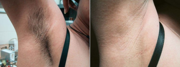 under-arm-hair-removal