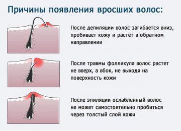 Что делать если после шугаринга врастают волосы