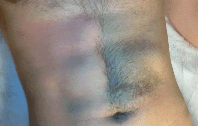 мужская интимная эпиляция фото до и после