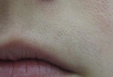 Волосы на верхней губе