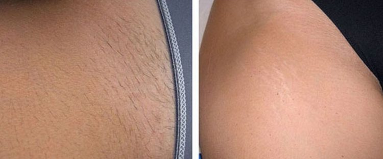 Лазерная эпиляция бикини до и после