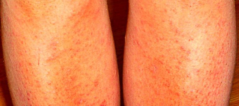 термобелье наоборот воспаление после бритья ног чем снять мало кто знает