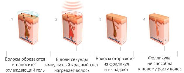 Лазерная эпиляция магнитогорск цены
