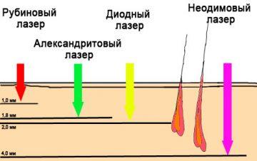 Как действует неодимовый лазер