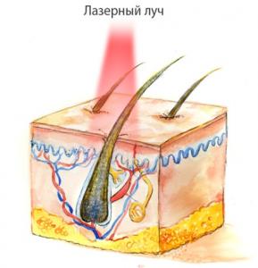 Лазерная эпиляция - принцип действия