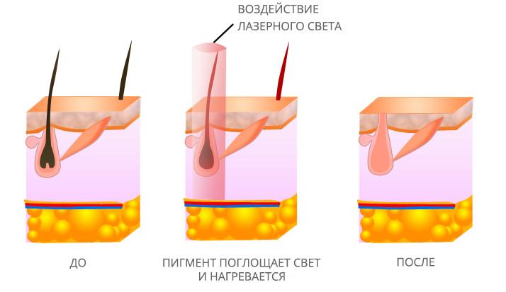 Принцип лазерной эпиляции