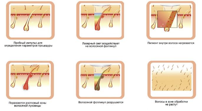 Механизм действия лазерной эпиляции
