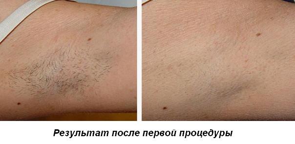 После первой процедуры лазерной эпиляции нет эффектами