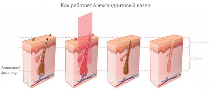 Работа александритового лазера