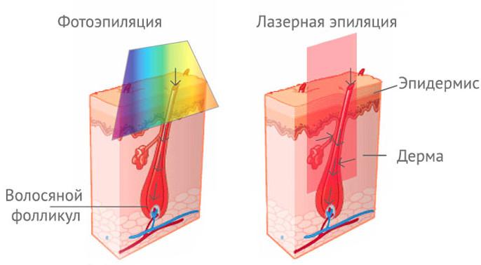 Принцип лазерной и фотоэпиляции
