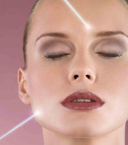 Лазерная эпиляция лица у женщин