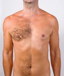 Преимущества лазерной эпиляции груди и живота