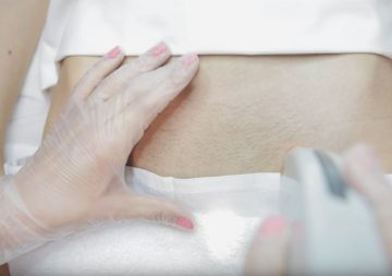 Больно ли делать лазерную эпиляцию бикини