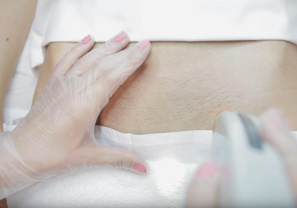 для больно ли мест эпилятора использование интимных