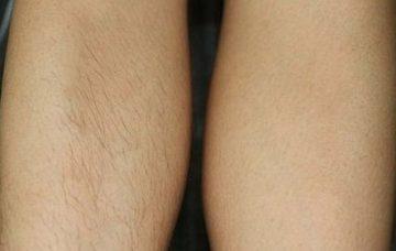 Лазерная эпиляция ног до и после