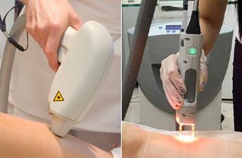 Лазерная эпиляция сравнительный анализ Мезотерапия Улица Короленко Чебоксары