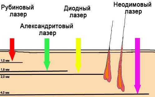 Длина волны лазеров