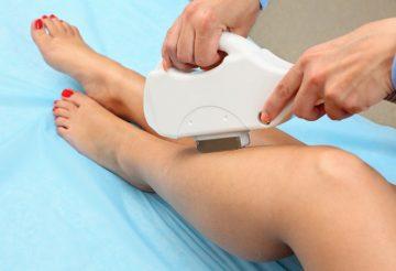 Вредна ли фотоэпиляция при беременности Лазерный пилинг Театральная набережная Чебоксары