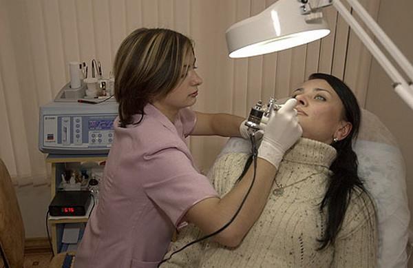 Электроэпиляция верхней губы
