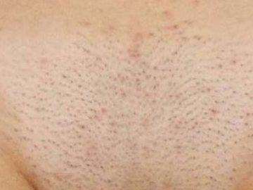 Раздражения после бритья в зоне бикини