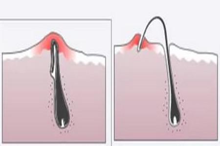 Вросшие волоски после бритья
