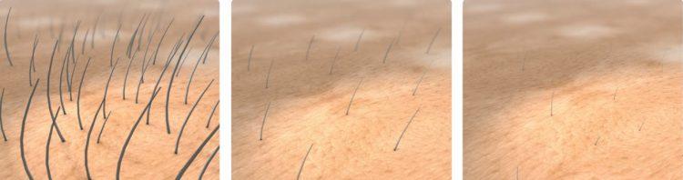 Рост волос после энзимной эпиляции