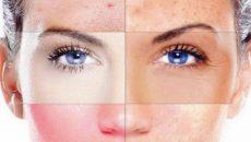 Типы кожи