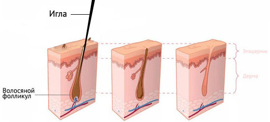 Электроэпиляция схема действия