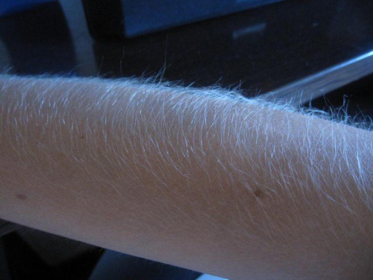 Один волос на руке растет
